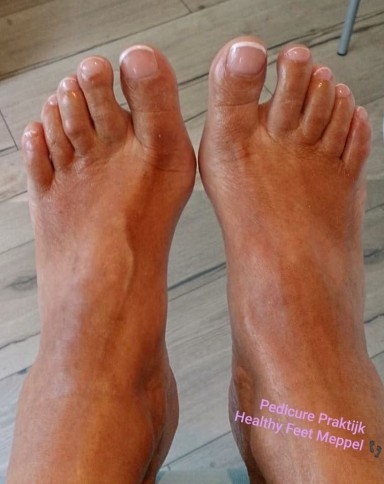pedicure praktijk healthy feet meppel french pedicure